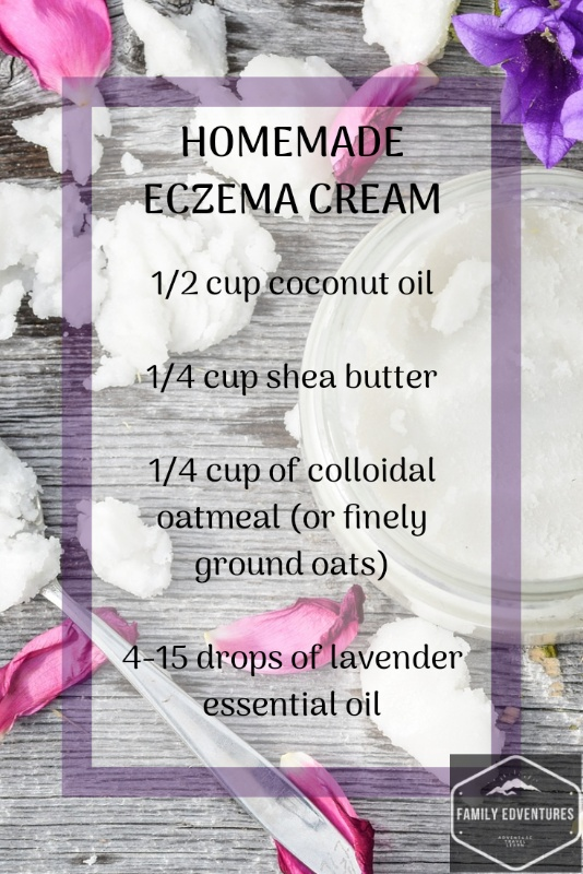 homemade eczema cream babies